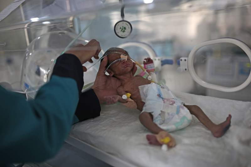 FILE - In this June 27, 2020 file photo, a medic checks a malnourished newborn baby inside an incubator at Al-Sabeen hospital in Sanaa, Yemen.  On Friday, Feb. 12, 2021, the United Nations is sounding the alarm over projections that more than 2 million Yemeni children are facing starvation this year.  (AP Photo/Hani Mohammed, File)